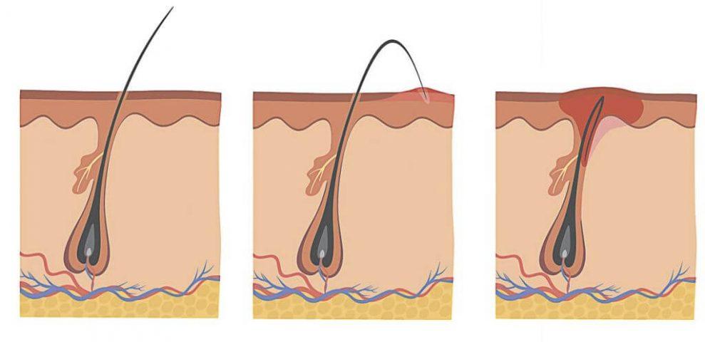 infezione della pelle peli incarniti