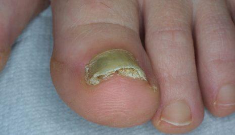 Micosi unghie, come curarla con l'utilizzo di rimedi naturali
